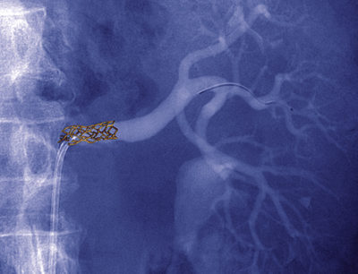 An angiogram of a renal stent treating stenosis at the ostium of a renal artery.