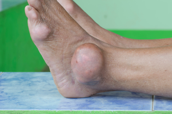 Weather Found to Affect Gout Attack Risk