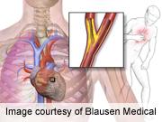 ACC: Ranolazine Relieves Chest Pain in Type 2 Diabetes