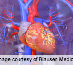 Sexual Dysfunction Linked to CVD in Extreme-Duration T1DM