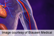Ideal BP for Kidney Disease Patients May Be 130-159/70-89