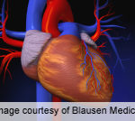 Guidance Issued for Erectile Dysfunction As Marker of CVD