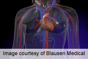 Severe Hypoglycemia in Diabetes Tied to Cardiac Disease