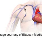 Type of Vascular Access Linked to Outcomes in Hemodialysis