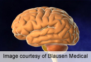 Higher Glucose Levels Linked to Increased Dementia Risk