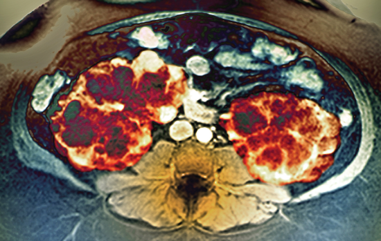 In a study, a hyponatremia drug slowed the growth of ADPKD cycts.