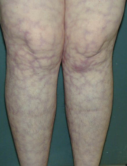 66-Year-Old Woman with Acute-on-Chronic Renal Failure and