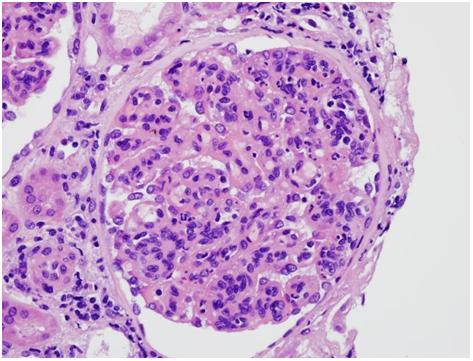 H&E stain showing mesangial and endocapillary hypercellularity and proliferation.