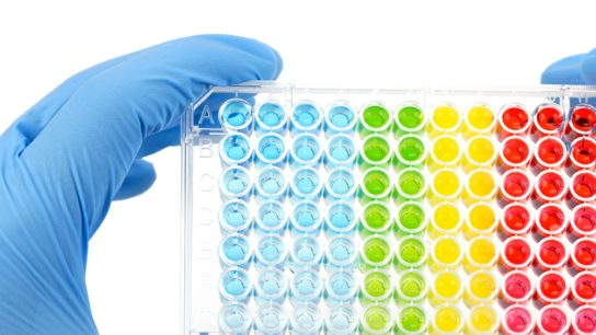 Latest Assays Can Improve Prostate Cancer Workup