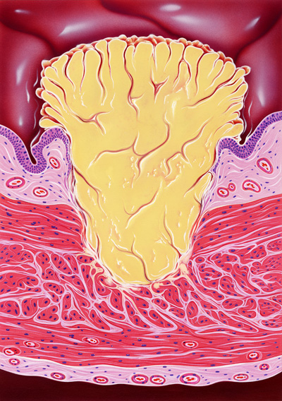 A section of the wall in the urinary bladder showing an invasive tumor (yellow).