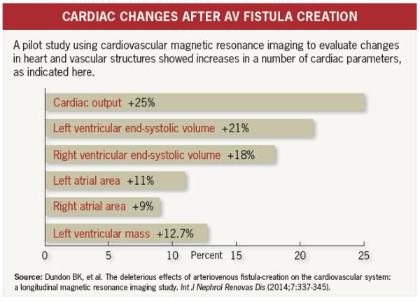 Arteriovenous Fistula Heart