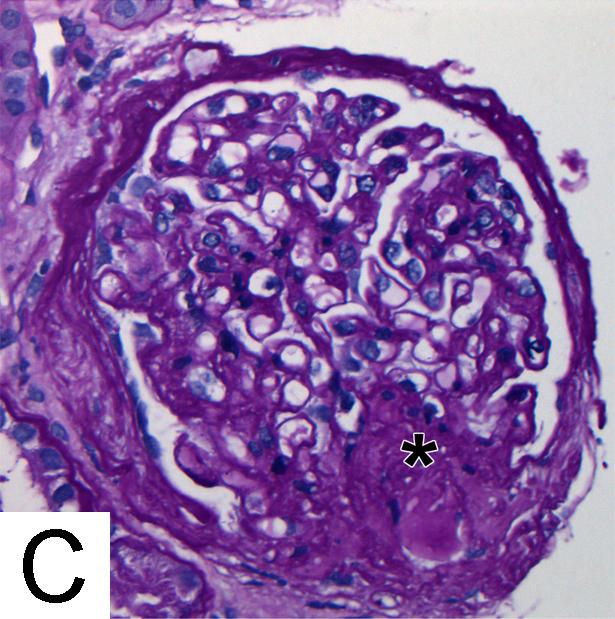 Glomerular and Vascular Diseases: Minimal Change Disease