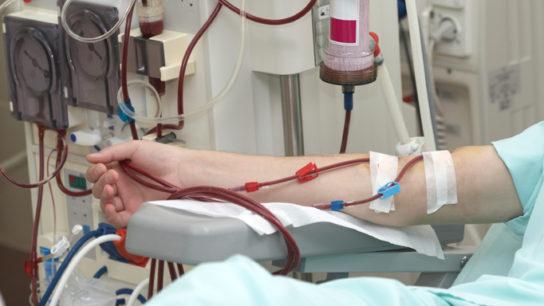 dialysis_TS_493762819