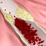 Dysfunctional HDL May Contribute to Excess CVD Risk in CKD Patients