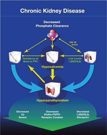 Figure 1: Pathogenesis of secondary hyperparathyroidism in CKD-MBD.