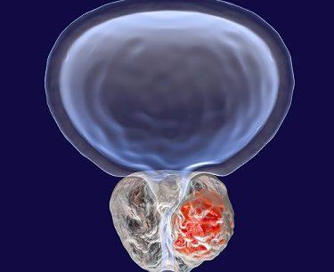 G_enlarged prostate_BPH