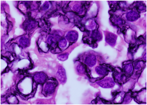 Silver stain showing double-contouring in the glomerular basement membrane structure.