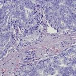 G_prostate cancer_micrograph