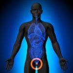 Hemiablation HIFU for Prostate Cancer