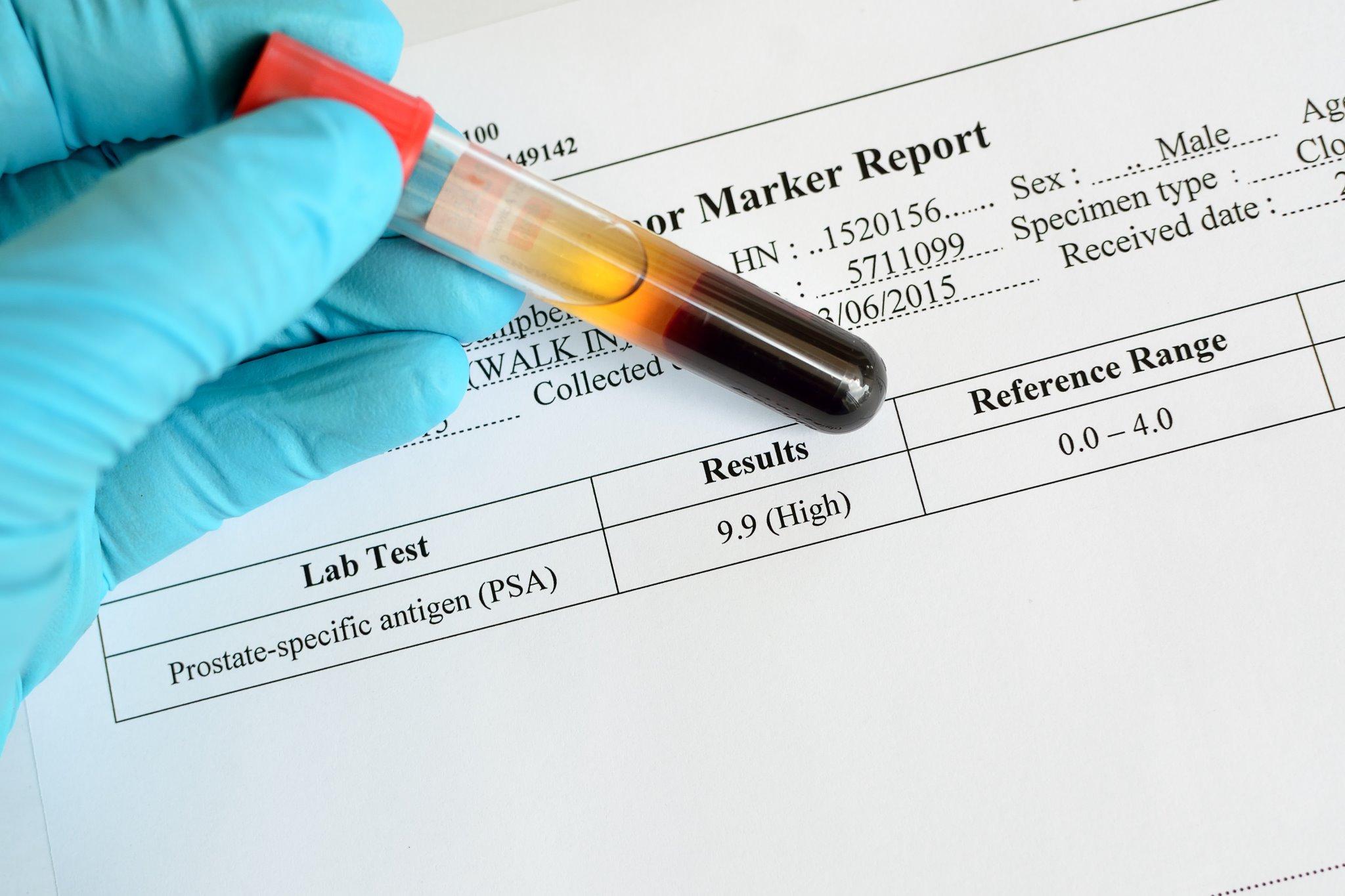 tumore prostata e psa chart