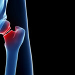 hip fracture_TS_470591603