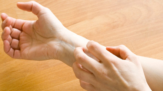 Does itching indicate healing?