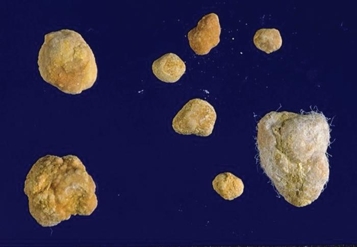 Study: 24-Hour Urinalysis Key for Managing Stones