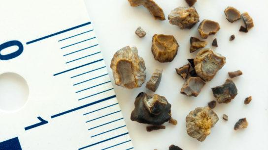 kidney stone bladder stone assorted against ruler
