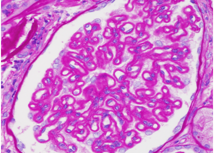 "A PAS statin shows heavy ""fuzzy"" staining along the glomerular capillary loops"