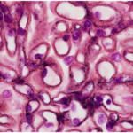 A Jones-Silver stain shows spikes along the glomerular capillary loops