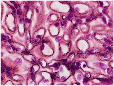 A Jones-Silver stain shows spikes along the glomerular capillary loops