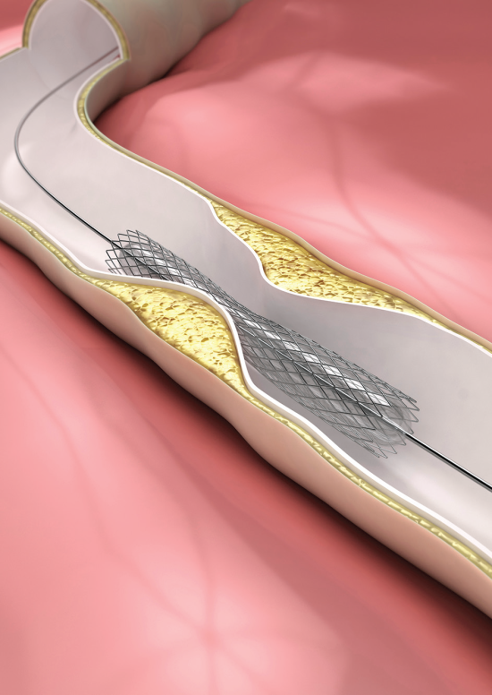 A physician is sued for allegedly placing unnecessary stents in patients.