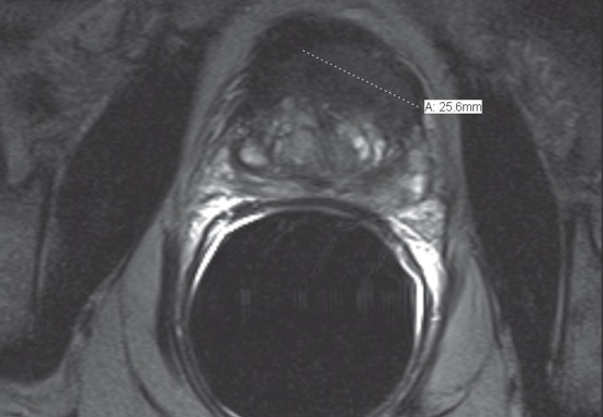 MRI can pinpoint a prostate tumor for targeted treatment.