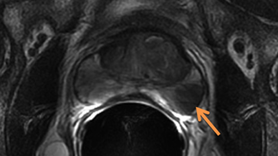 Axial T2-weighted image of the prostate demonstrates a focal T2-hypointense tumor (arrow) in the left posterolateral peripheral zone.