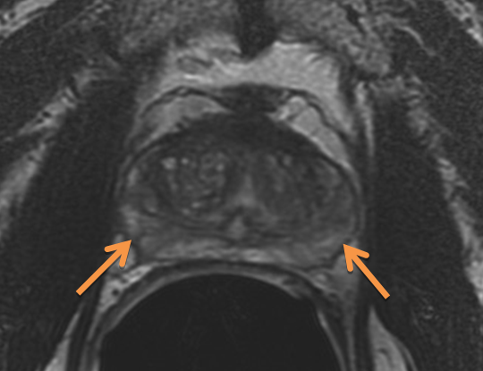 Indeterminate findings on MRI. Axial (Slide 6) and coronal (Slide 7) T2-weighted images demonstrate heterogeneous signal intensity throughout the peripheral zone. In some cases this may be due to post-biopsy artifact, and it limits the detection of tumors on MRI.