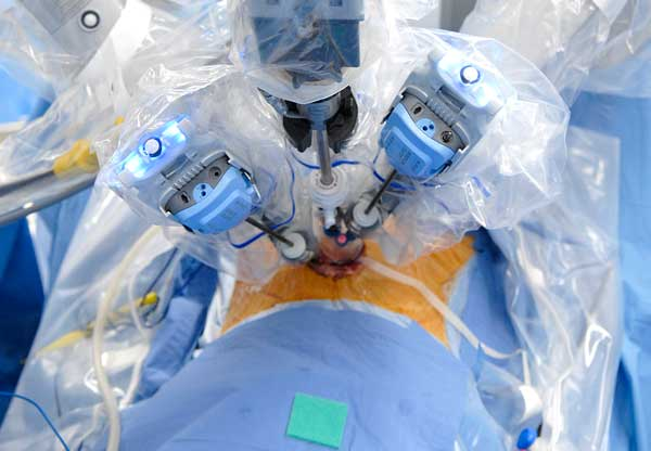 da Vinci robot installed with a patient in the supine position.