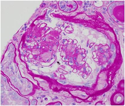 amorphous weakly PAS positive regions of nodular glomerular lesions