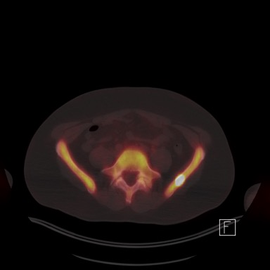 PET scan PCa metastases