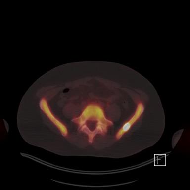 PET scan PCa metastases