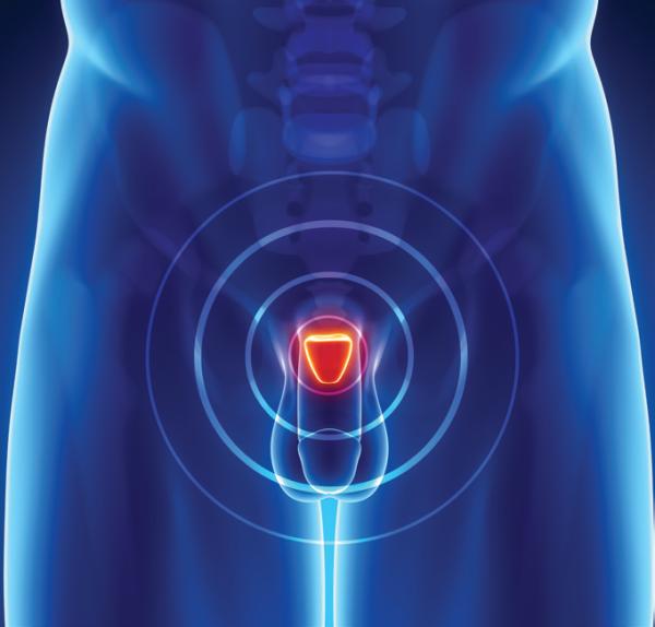 prostate highlighted
