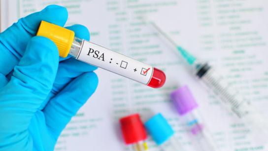 PSA-prostate-cancer-0516