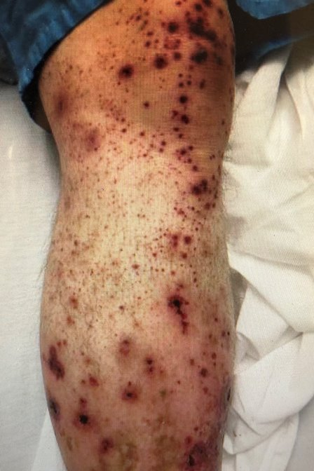 Figure 1. Purpuric erythematous rash on patient's arm.