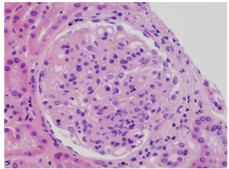 Light micrographs of a biopsy specimen revealed glomeruli with endocapillary proliferation with some degree of mesangial expansion and proliferation. Wire loops are evident in image B and immunofluorescent stains for C1q are shown in image C.