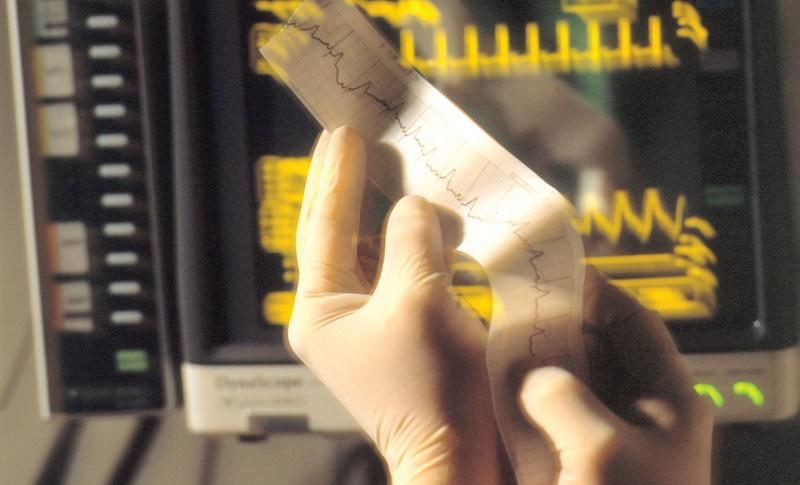 No Kidney Injury Risk from High-Potency Statins