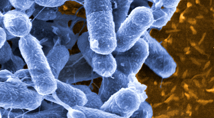 Escherichia coli is the most common cause of bacterial prostatitis.