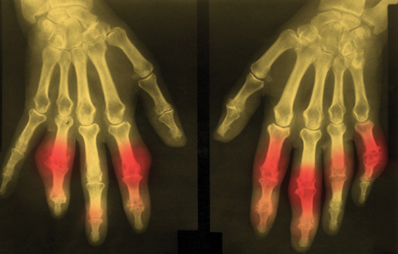 Part III: Clinical Challenges and Renal Considerations in Managing Gout