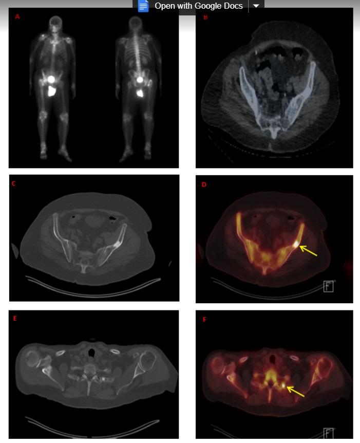 mri pelvis prostate scan psa levels