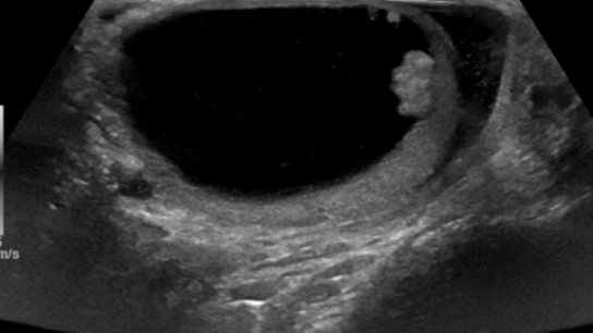 Figure 1. Scrotal ultrasound demonstrates a 5.5 × 5.5cm right intra-testicular mass with peripheral nodularity.