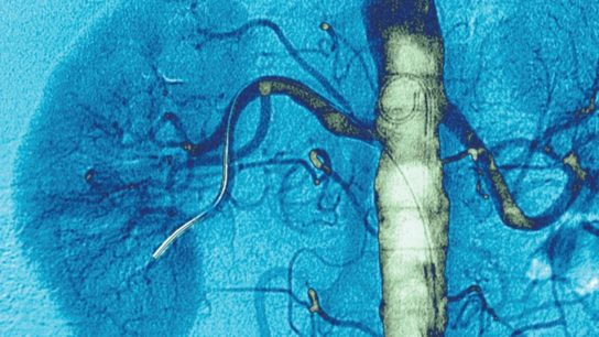 Stents do not significantly improve treatment of renal artery stenosis.
