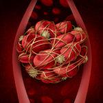 DVT deep vein clot thrombosis